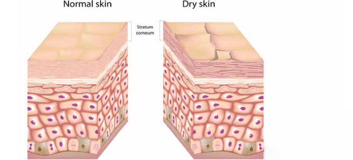 What Is The Difference Between Dry Skin And Eczema Celltone Skin Care